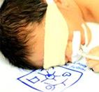 Children with Congenital Heart Defects (CHD)